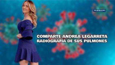 Photo of Andrea Legarreta muestra una radiografía de sus pulmones en el hospital por Covid-19