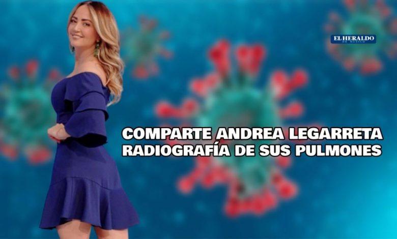 Andrea Legarreta muestra una radiografía de sus pulmones en el hospital por Covid-19